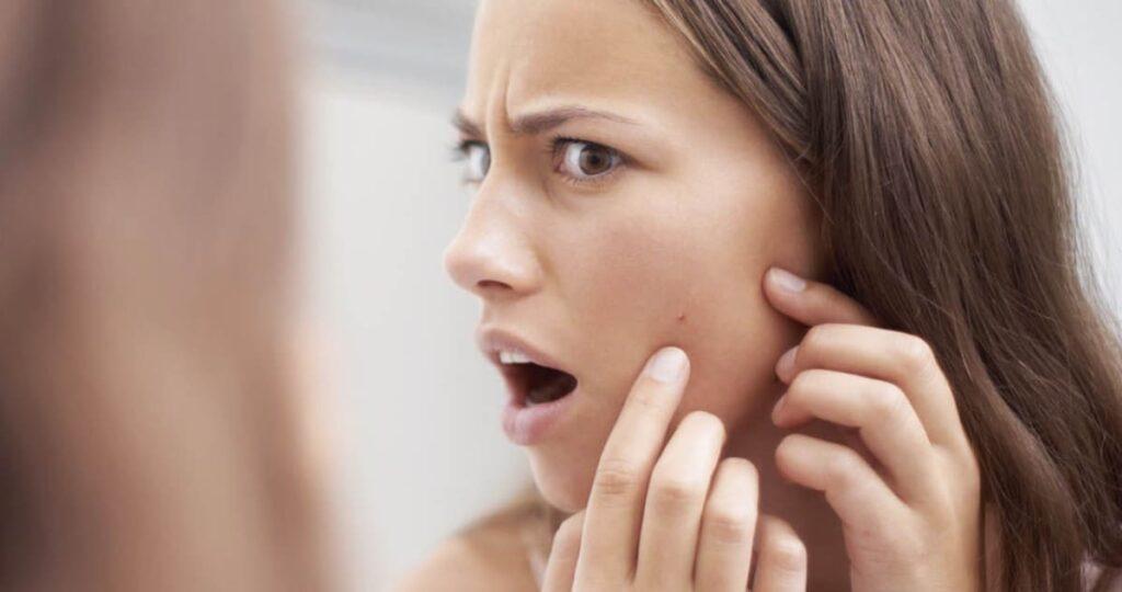 Продукты, способствующие появлению угревой сыпи на лице